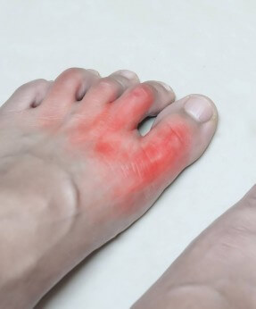 A foot showing gout symptoms in the toes